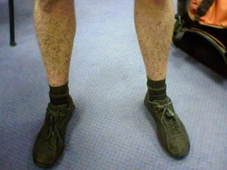 2006-07-10--Muddy Legs