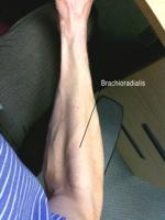 2009-09-11--Brachioradialis