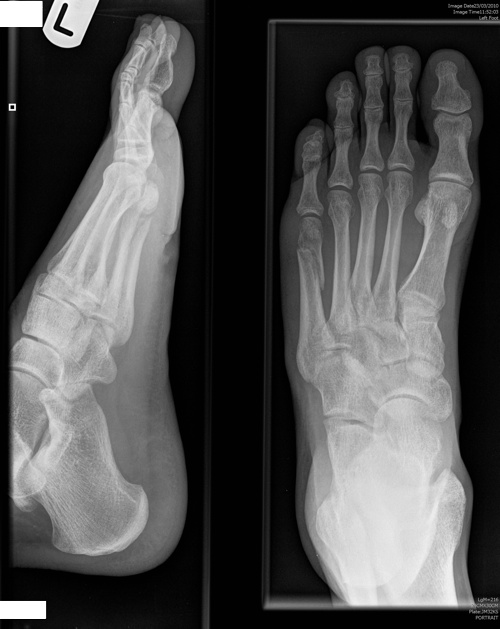 46 Days Post-Fracture