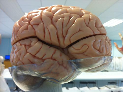 A brain. Yesterday.