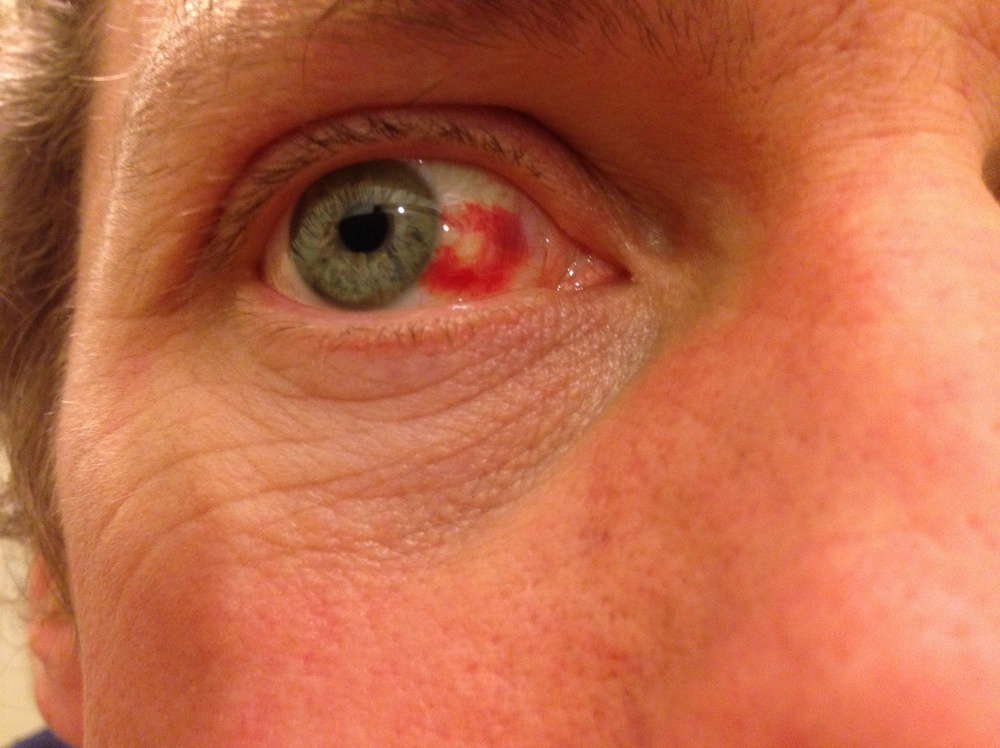Sub-conjuntival haematoma at 48 hours