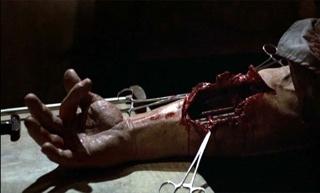 Terminator arm